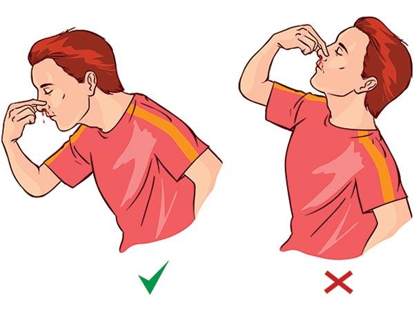 xử lý khi chảy máu cam