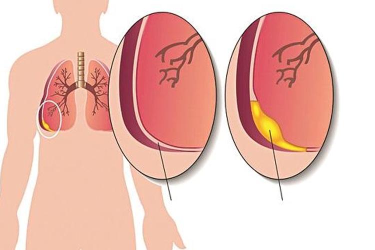 tràn dịch màng phổi
